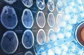 Bıçaksız Beyin Ameliyatı